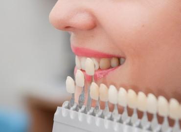 Estética Dental y Diseño de Sonrisa: Carillas y Aclaramiento Dental