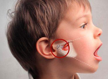 Articulación Temporo Mandibular