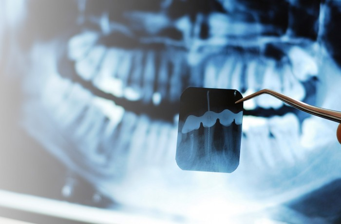Radiología Oral